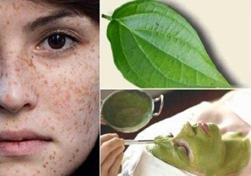 Tổng hợp các phương pháp chữa bệnh nám da tại nhà