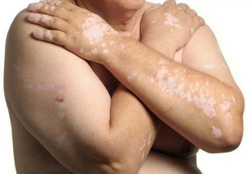 Bệnh bạch biến là gì? Nguyên nhân và triệu chứng 3