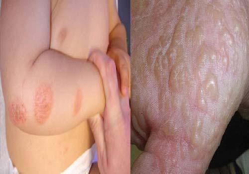 Tổng hợp hình ảnh bệnh eczema ở người lớn và trẻ sơ sinh