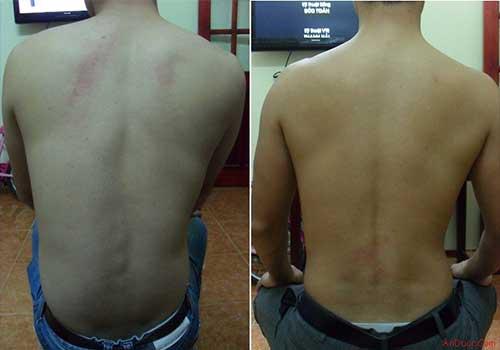 Biểu hiện của bệnh nhân bị gai cột sống