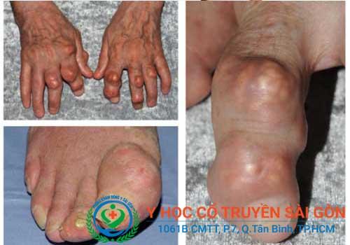 Tổng hợp hình ảnh bệnh Gút (gout) giai đoạn đầu và cuối