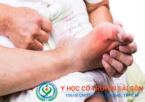 Hình ảnh bệnh gút giai đoạn 2 bắt đầu có dấu hiệu sưng khớp và nóng đỏ