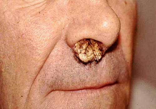 Tổng hợp hình ảnh bệnh sùi mào gà ở nam và nữ giới