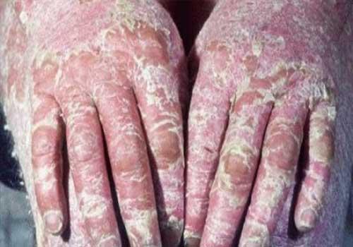 Bệnh vảy nến á sừng là gì nguyên nhân triệu chứng biểu hiện