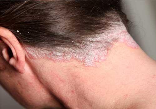 Tổng hợp hình ảnh bệnh vảy nến á sừng ở da đầu nam và nữ