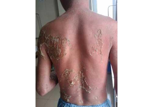 Tổng hợp hình ảnh bệnh vảy nến á sừng ở cơ thể nam và nữ