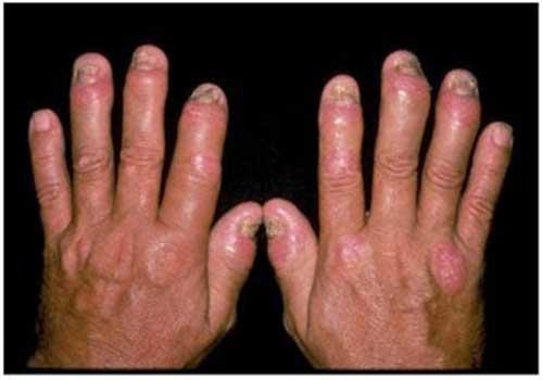 Tổng hợp hình ảnh bệnh vảy nến á sừng ở tay nam và nữ