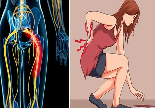 Tổng hợp hình ảnh đau dây thần kinh tọa