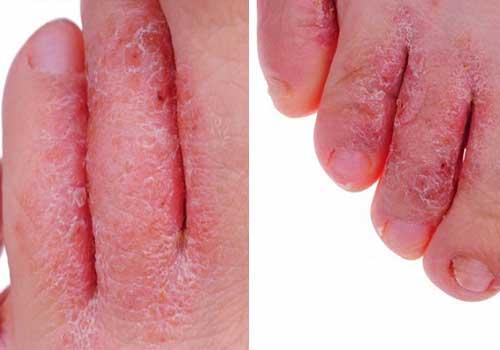 Bệnh nấm kẽ chân là gì? triệu chứng cách chữa và cách phòng tránh 2