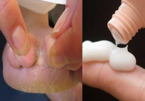 Bệnh nấm kẽ chân là gì? triệu chứng cách chữa và cách phòng tránh 4