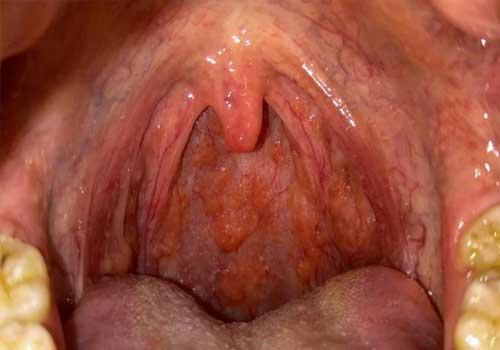 Viêm họng hạt mãn tính quá phát
