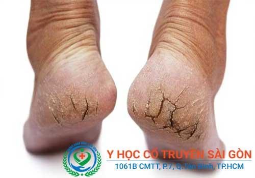 Tổng hợp kinh nghiệm, mẹo và cách chữa nứt nẻ chân tay
