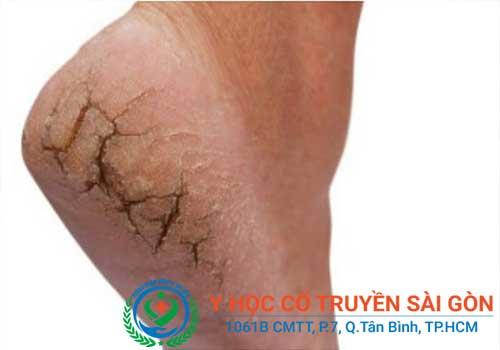 Tổng hợp kinh nghiệm mẹo và cách chữa nứt nẻ chân tay