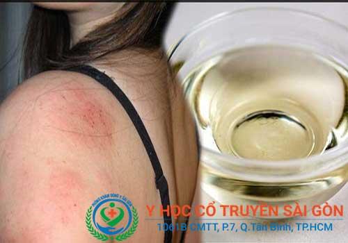 Kinh nghiệm và mẹo chữa bệnh chàm bằng dầu dừa, trà xanh...
