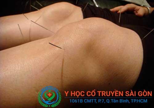 Chữa đau khớp gối bằng thuốc Đông y kết hợp châm cứu bấm huyệt tại PK YHCT Sài Gòn