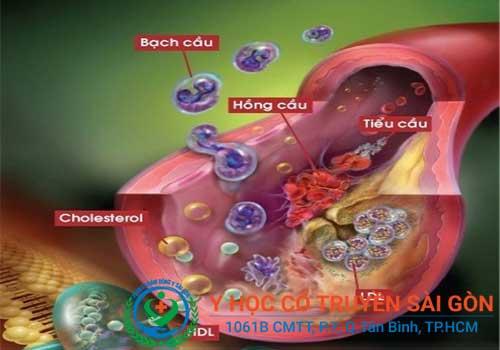Tổng hợp Kinh nghiệm và mẹo chữa bệnh rối loạn lipid máu trong dân gian