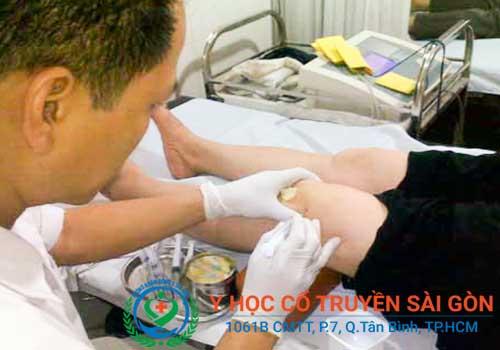 Chữa bệnh tràn dịch khớp gối cần tập trung vào nguyên nhân gây bệnh