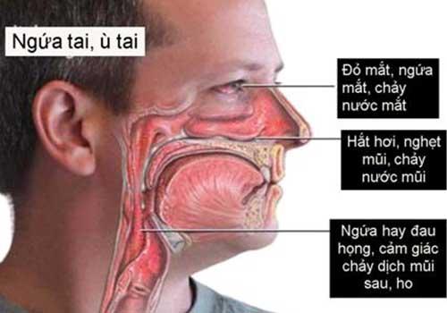 Các triệu chứng, dấu hiệu và biểu hiện của viêm mũi dị ứng ngày càng trở nên nghiêm trọng