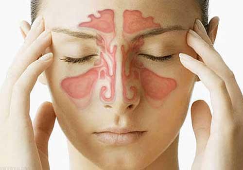 Đau thái dương là triệu chứng, dấu hiệu và biểu hiện của viêm mũi dị ứng xoang trán