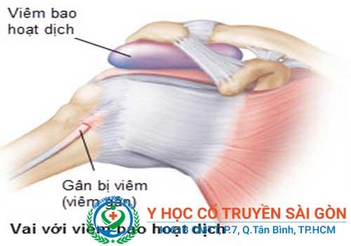 Nguyên nhân viêm bao hoạt dịch thường do vận động quá sức