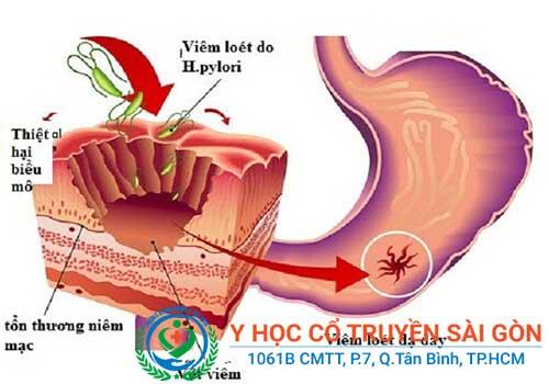 Ảnh hưởng đến hệ tiêu hóa do viêm đa dây thần kinh