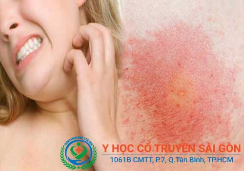 Viêm da dị ứng là gì? Triệu chứng dấu hiệu nguyên nhân