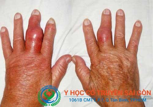 Viêm đa khớp dạng thấp thường có triệu chứng dấu hiệu sưng đau đối xứng