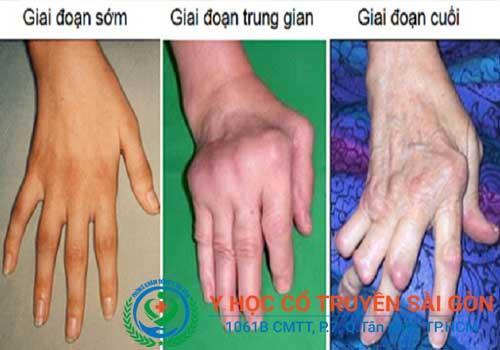 Viêm đa khớp dạng thấp không chữa trị sớm sẽ gây biến chứng nguy hiểm