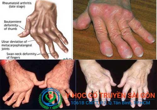 Nguyên nhân gây viêm đa khớp dạng thấp thường do tuổi tác