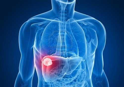 Viêm gan B,C có nguy hiểm không? có chữa khỏi được không?