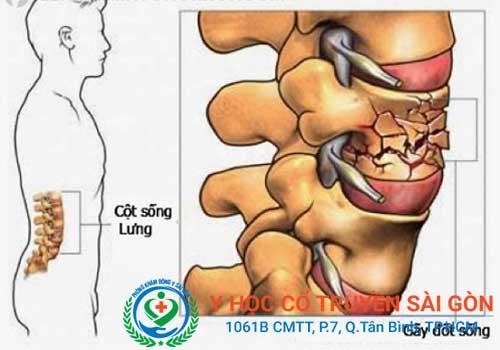 Vôi hóa cột sống gây ra nhiều biến chứng nguy hiểm