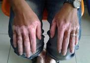 Bệnh bạch biến là gì? Nguyên nhân triệu chứng dấu hiệu