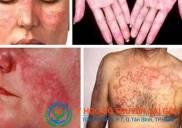 Địa chỉ khám và chữa bệnh lupus ban đỏ bằng đông y ở đâu tốt TPHCM