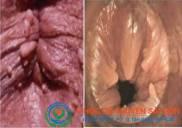 Bệnh u nhú hậu môn là gì Triệu chứng dấu hiệu nguyên nhân