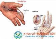 Bệnh viêm bao gân là gì Triệu chứng dấu hiệu và nguyên nhân
