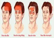 Bệnh đau nửa đầu vai gáy là gì triệu chứng nguyên nhân cách điều trị
