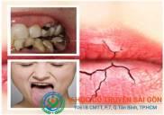 Cách điều trị bệnh khô miệng hiệu quả