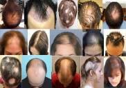 Địa chỉ khám và chữa bệnh rụng tóc bằng Đông y ở đâu tốt TPHCM?