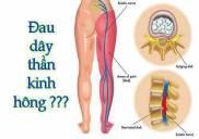 Địa chỉ khám và chữa đau dây thần kinh tọa ở đâu tốt tphcm