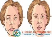 Bài thuốc nam chữa méo mồm miệng tại YHCT Sài Gòn