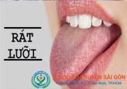 Rát lưỡi, khô miệng là dấu hiệu của bệnh gì?